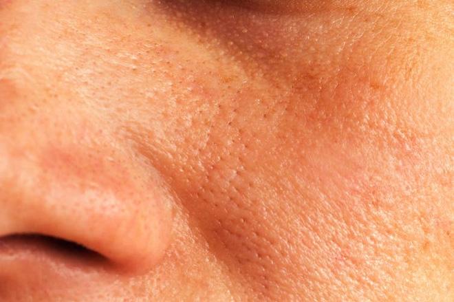 Một số người có làn da bình thường, nhưng điều họ muốn là se khít lại lỗ chân lông có vẻ hơi lớn của mình